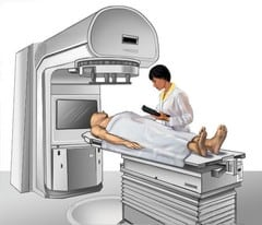 radiation treatment procedure for a cancer patient