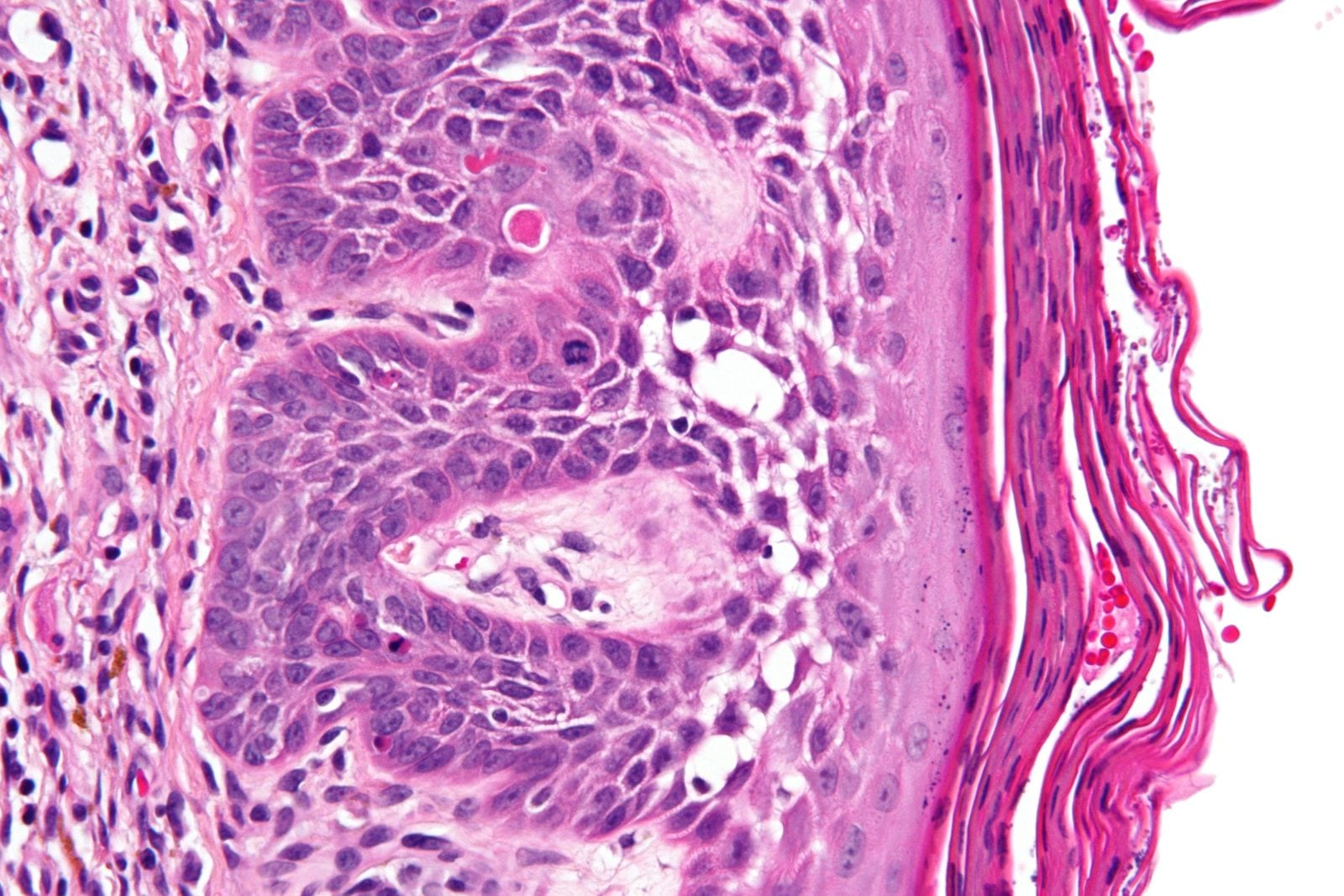 What Is Actinic Keratosis Southeast Radiation Oncology