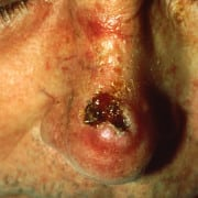 Squamous cell carcinoma on the nose. Public domain.