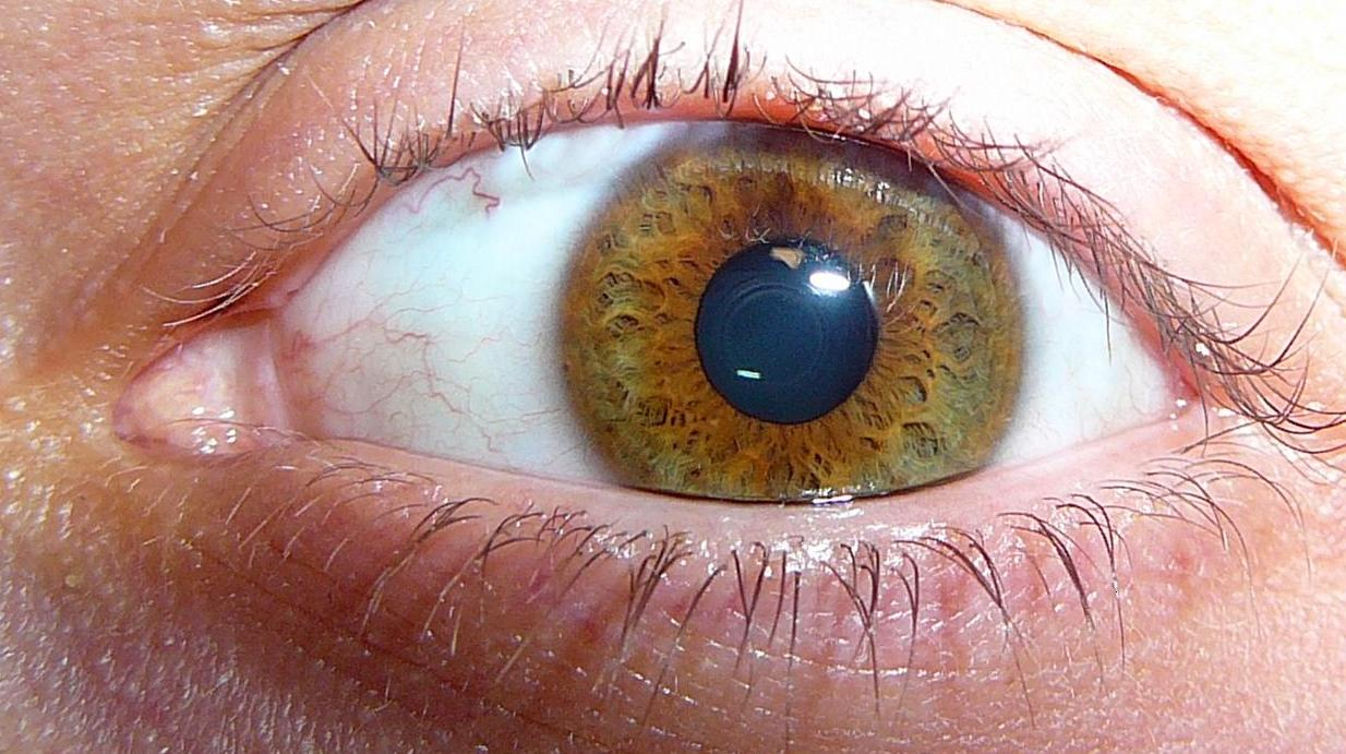 Stages Of Intraocular Uveal Melanoma Southeast