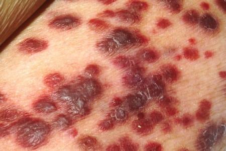 Kaposi sarcoma of the skin. Creative commons image.