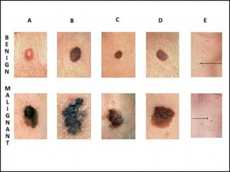 Courtesy of The Skin Cancer Foundation.
