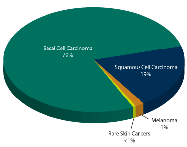 skin-cancer-incidence-pie-chart