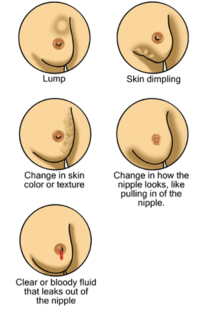 An Illustration of Breast Cancer Signs and Symptoms to Look for Early Detection