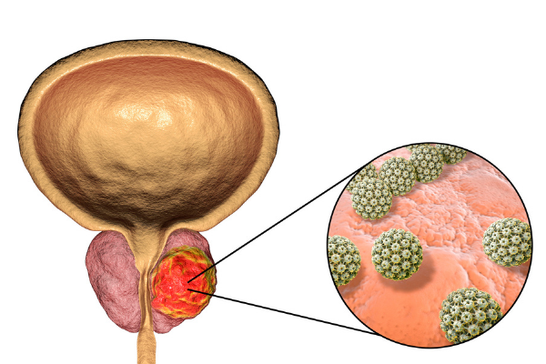 Prostate cancer diagram showing cancerous cells