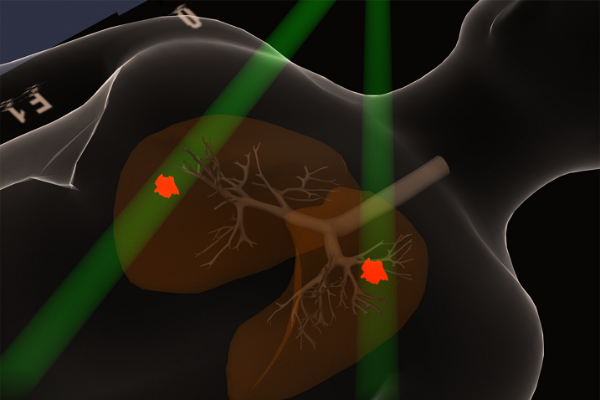 illustration of how radiation therapy target cancer cells in the lungs